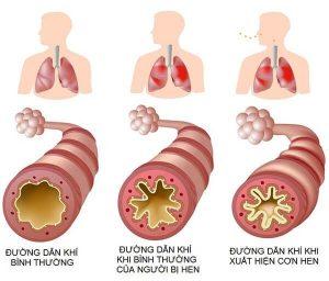 Câu hỏi của bạn đọc: Bệnh hen suyễn có di truyền không?