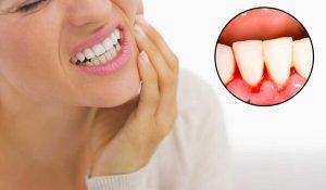 Tại sao bị chảy máu chân răng? Biểu hiện và cách khắc phục