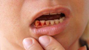 Cha mẹ nên biết: Cách chữa chảy máu chân răng ở trẻ em
