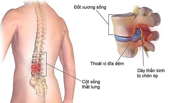 Bệnh thoái hóa đốt sống lưng – Triệu chứng và cách chữa