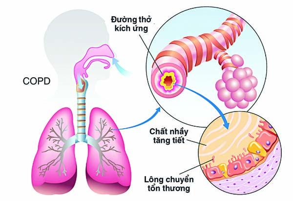 Bệnh phổi tắc nghẽn mãn tính COPD là gì? Cách điều trị