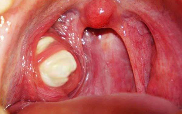 Viêm amidan hốc mủ có nên cắt không? Cách chữa bệnh