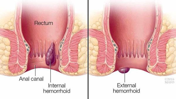 Bệnh trĩ ở nữ giới có ảnh hưởng tới sinh sản không?