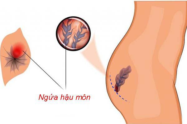 Bệnh trĩ sau sinh là gì? Cách chữa bệnh cho phụ nữ sau sinh