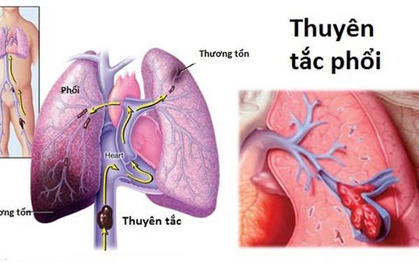 Điều trị đợt cấp bệnh phổi tắc nghẽn mãn tính COPD