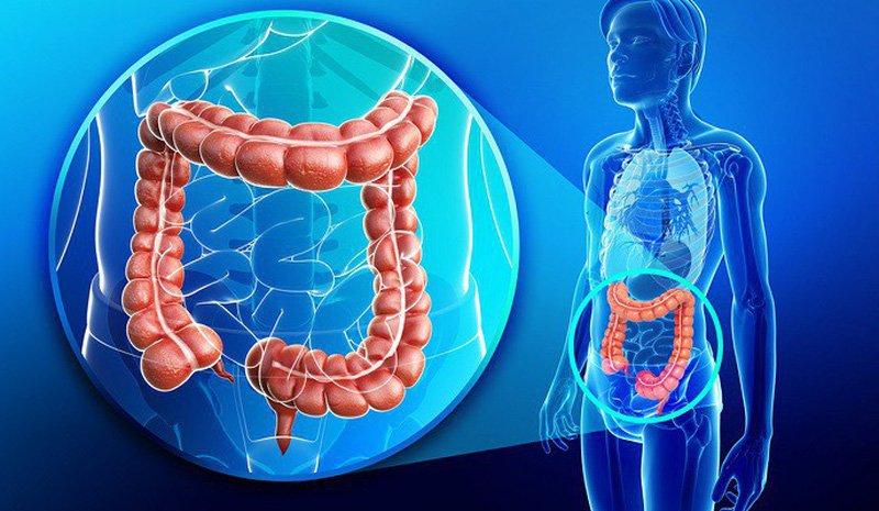 Bệnh viêm đại tràng là gì? Nguyên nhân, biểu hiện và cách điều trị