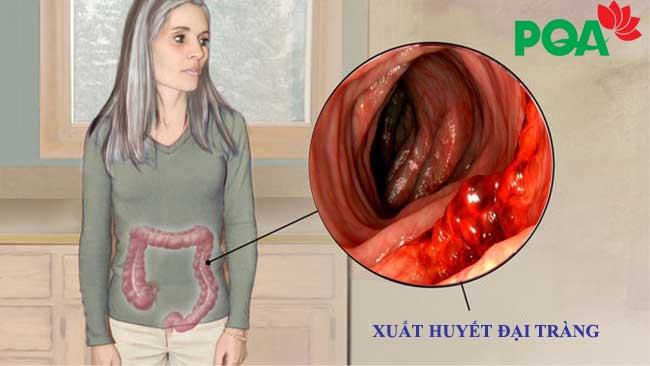 Xuất huyết đại tràng - Biến chứng nguy hiểm không thể bỏ qua