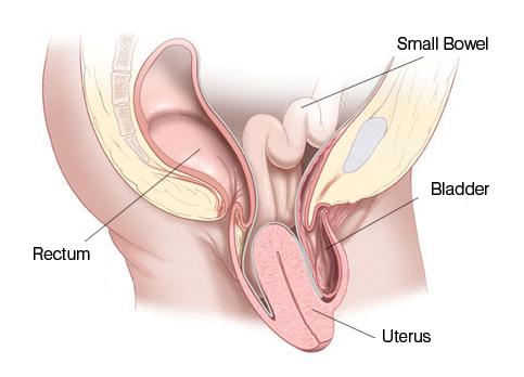 Các cấp độ của sa tử cung và hình ảnh qua từng cấp độ 1, 2, 3