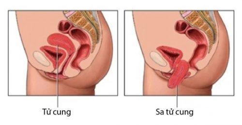 chữa sa tử cung bằng đông y