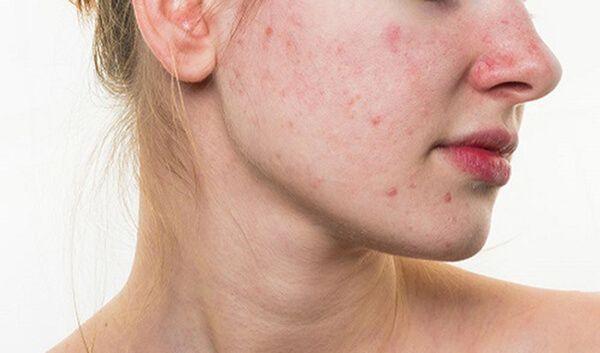 Nóng trong người nổi mẩn đỏ là gì? Những sai lầm trong điều trị nóng trong