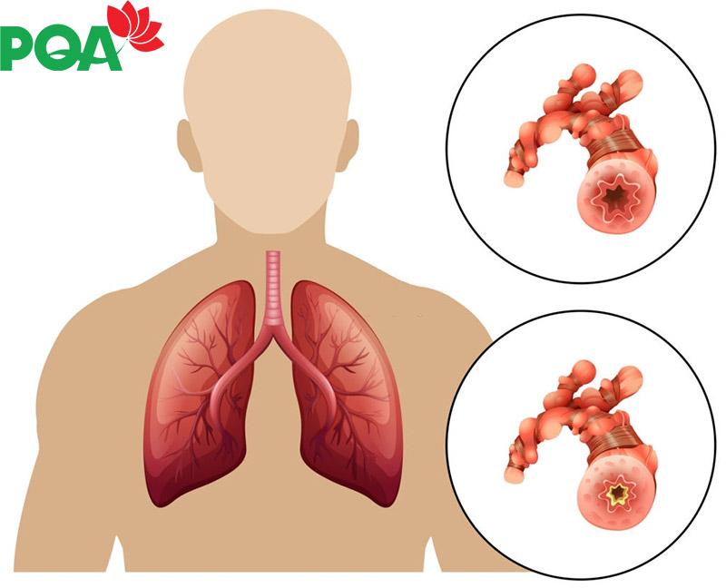 Phân biệt hen suyễn và phổi tắc nghẽn mãn tính COPD