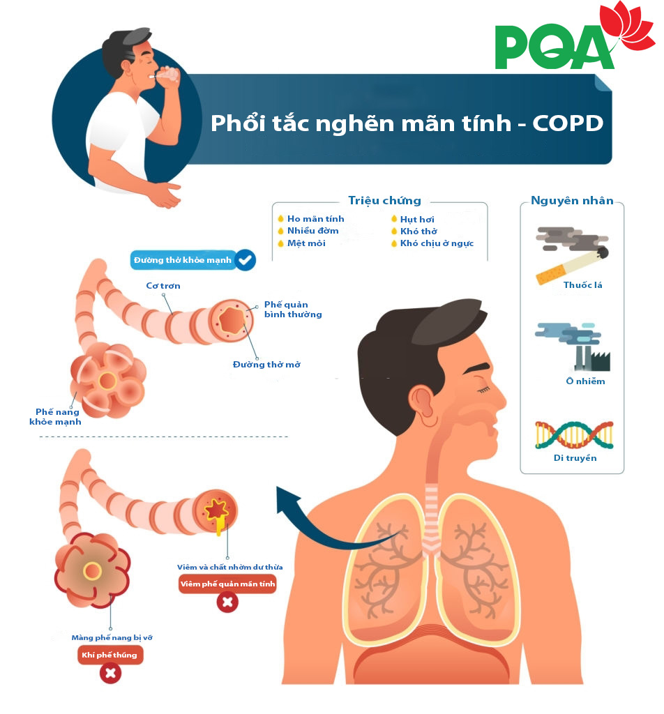 Phân biệt phổi tắc nghẽn mãn tính COPD và Hen phế quản