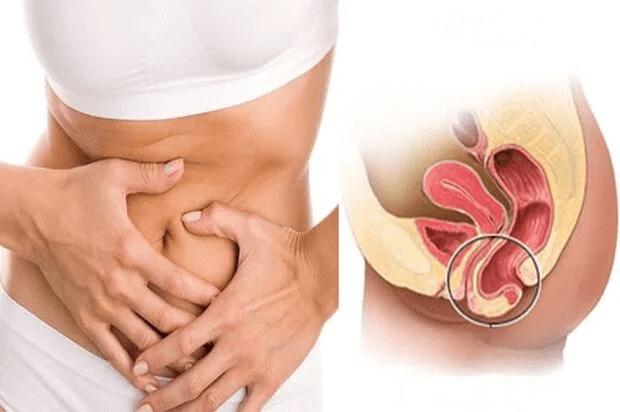 Các Phương pháp điều trị sa tử cung và thuốc chữa sa tử cung