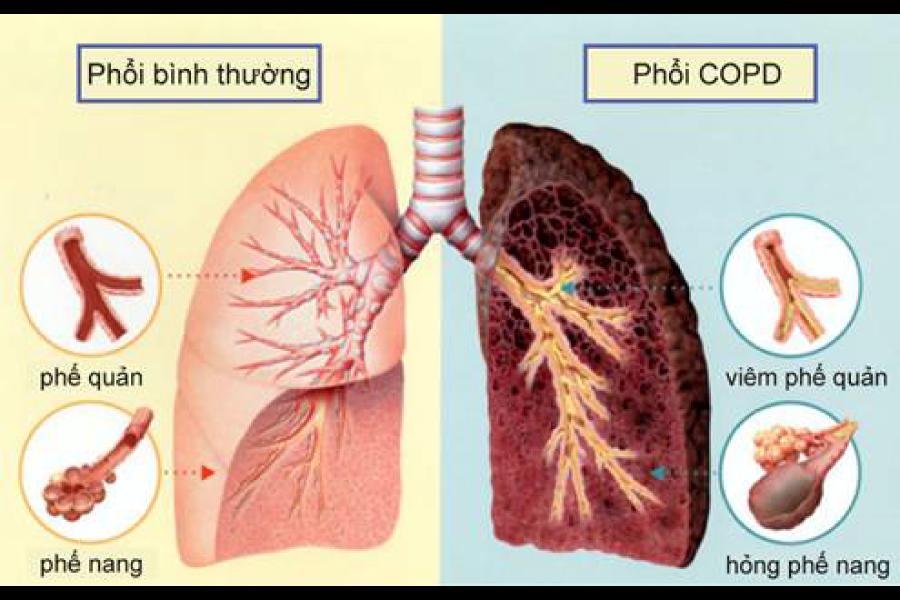 Bệnh COPD là gì? Có chữa được không? Triệu chứng và cách chẩn đoán chính xác