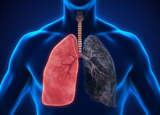 Bệnh đợt cấp COPD là tình trạng đã khá nặng