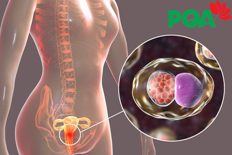 Giải pháp điều trị Bệnh viêm cổ tử cung mãn tính mới nhất 2020