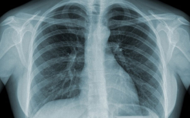 hình ảnh chụp x quang copd