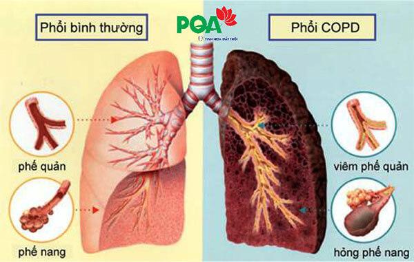 bệnh phổi tắc nghẽn mãn tính copd theo đông y