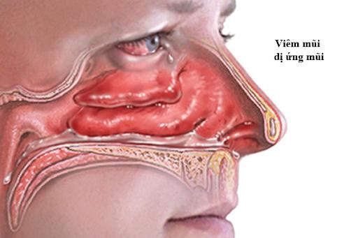 Bất ngờ với kết quả chữa viêm mũi dị ứng bằng Đông y: hiệu quả tận gốc bệnh!