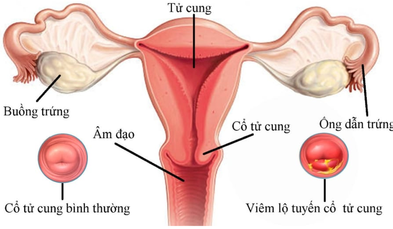 [Kiến thức] 3 cấp độ nặng nhẹ của viêm lộ tuyến cổ tử cung