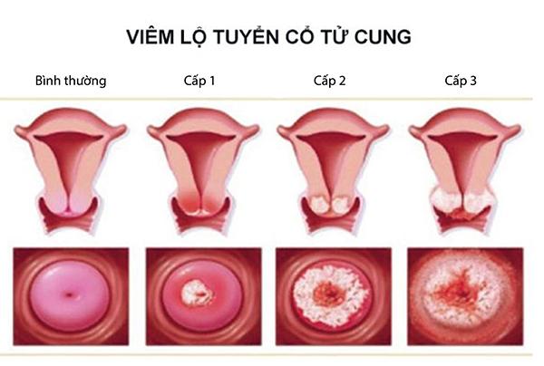 Viêm lộ tuyến cổ tử cung là gì? Nguyên nhân, biểu hiện và cách phòng ngừa bệnh