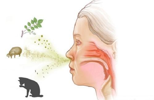 viêm mũi dị ứng do các lông động vật, phấn hoa