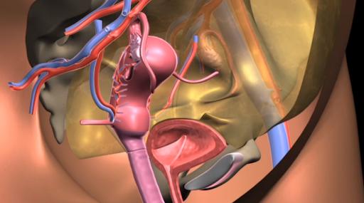 Quy tắc vàng trong phục hồi sa tử cung có thể bạn chưa biết!