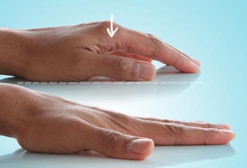bài tập căng ngón tay