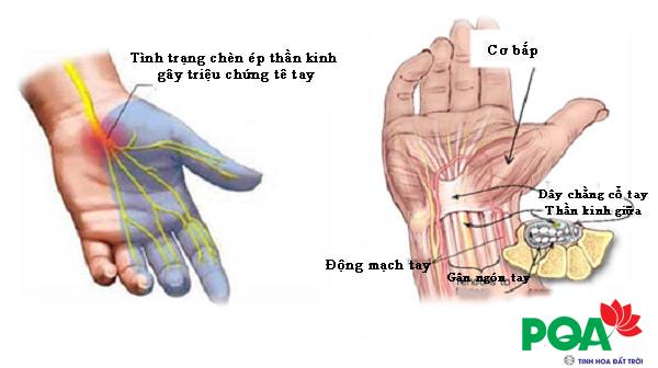 chứng tê bàn tay