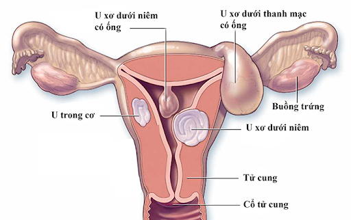 Tử cung là gì? Vai trò và những bệnh lý liên quan tới tử cung không thể bỏ qua