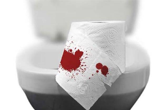 Táo bón lâu ngày ra máu có thể gây trĩ