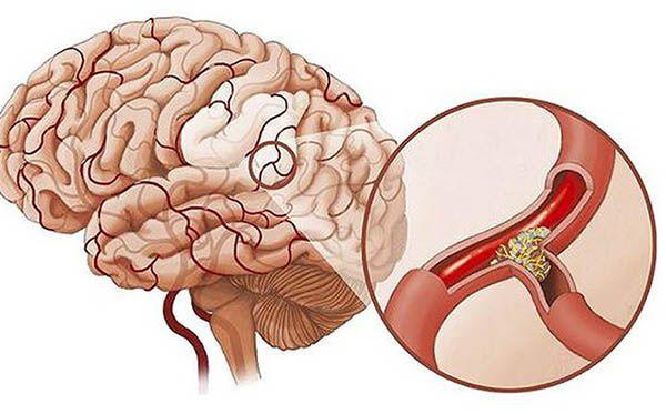Thoái hóa đốt sống cổ có thể gây thiếu máu lên não