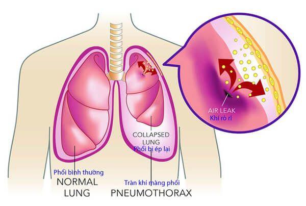 Bệnh hen suyễn có gây tràn khí màng phổi không?