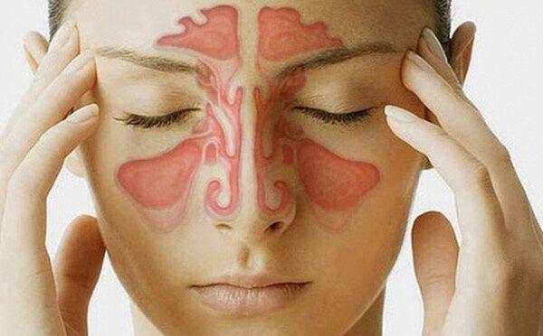 Chảy máu cam do bệnh lý viêm mũi