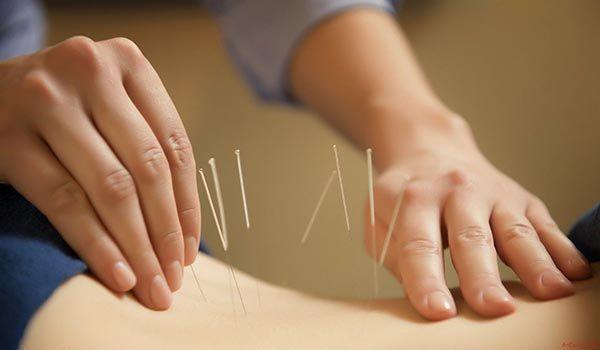 Châm cứu, bấm huyệt hỗ trợ giảm đau cho người thoái hóa đốt sống lưng