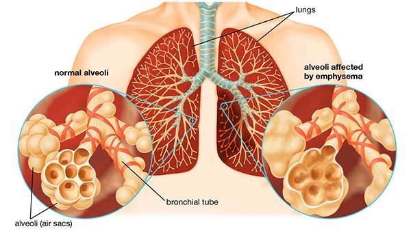 Bệnh phổi tắc nghẽn mãn tính giai đoạn cuối