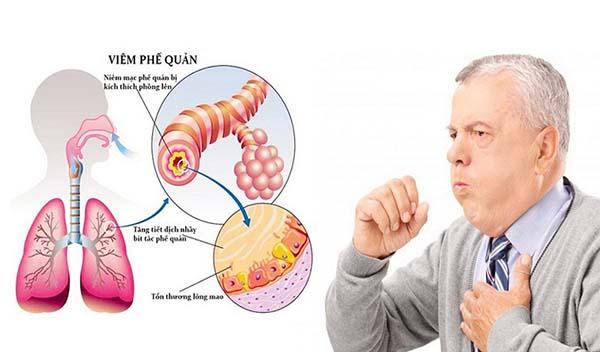 Sự khác nhau giữa viêm phổi và viêm phế quản