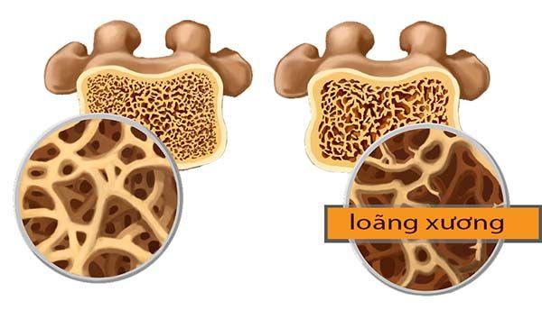Người bị loãng xương có thể gia tăng nguy cơ thoái hóa đĩa đệm