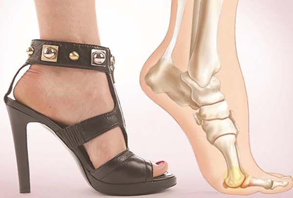 Thoái hóa gót chân do đi giày cao gót