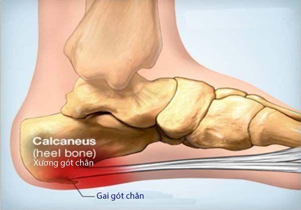Thoái hóa gót chân là gì?
