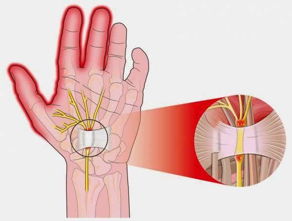 Chấn thương cổ tay có thể dẫn tới thoái hóa