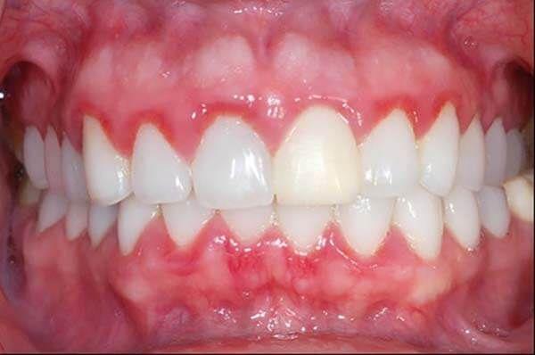 Chảy máu chân răng gây viêm nướu
