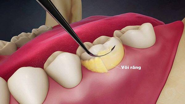 Phần vôi răng tích tụ gây chảy máu chân răng