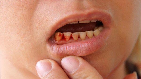 Chảy máu chân răng xảy ra do đâu?