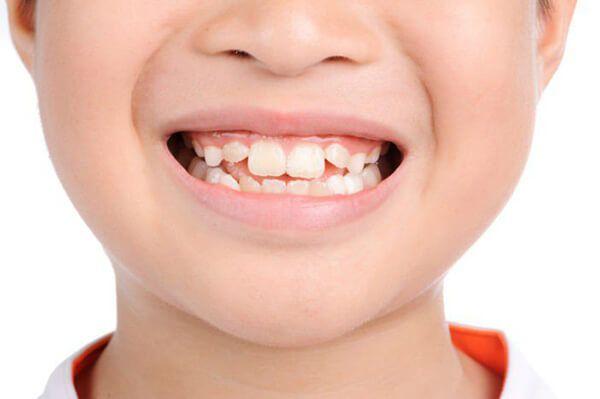 Răng mọc lệch có thể gây khó khăn trong vệ sinh răng miệng