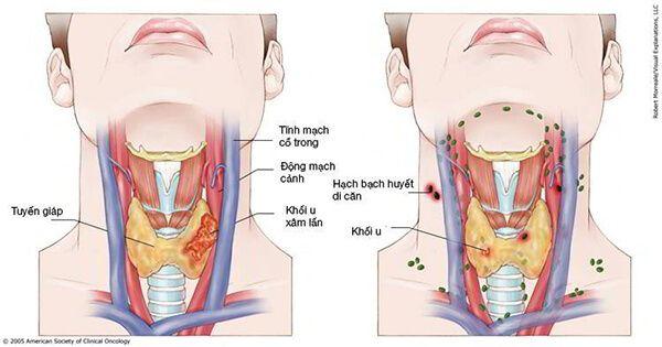 Chảy máu cam đau đầu cảnh báo ung thư vòm họng