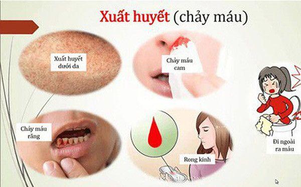 Biến chứng sốt xuất huyết gây chảy máu