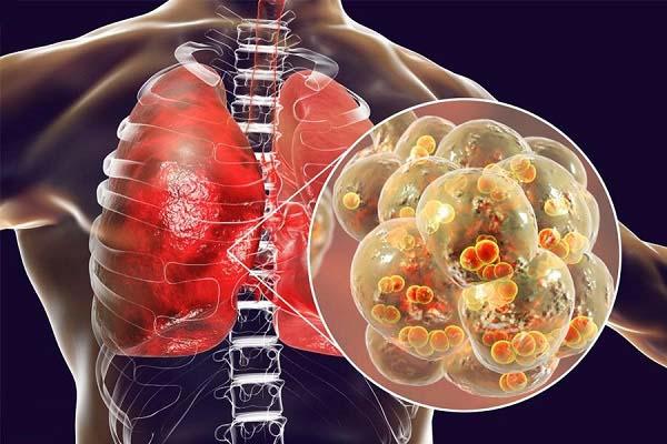 Biến chứng của COPD dẫn tới viêm phổi