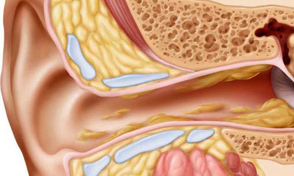 Cắt bỏ viêm amidan hốc mủ có thể gây biến chứng viêm tai giữa