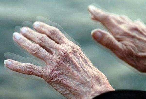 Biểu hiện run tay của bệnh Parkinson